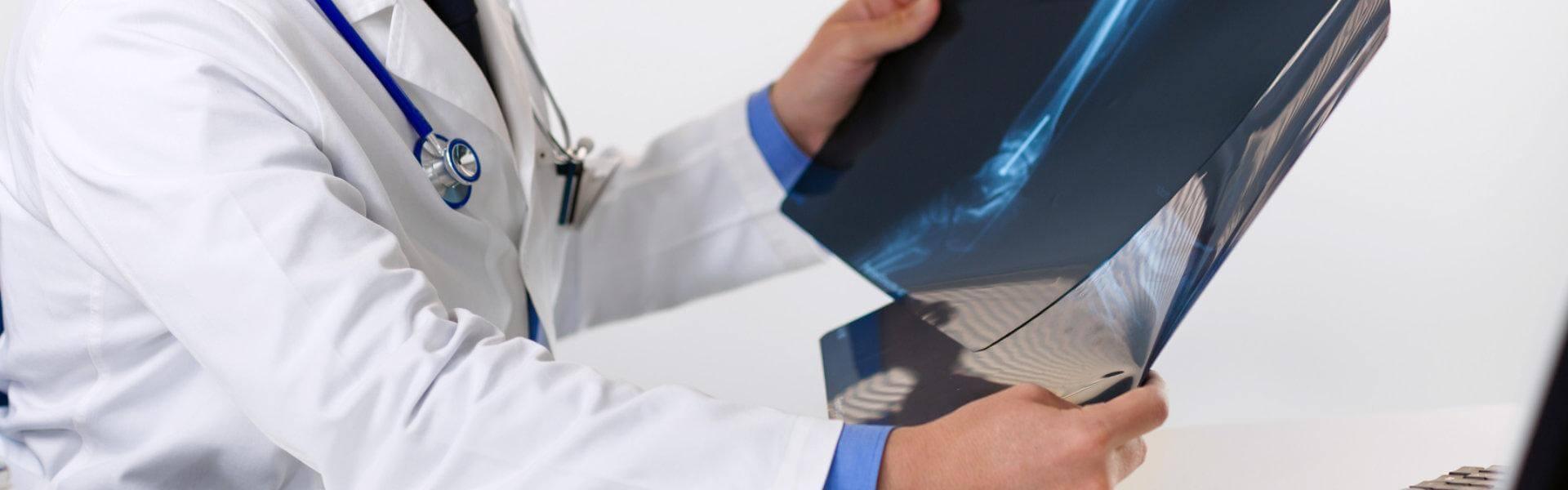 Zdjęcie lekarza sprawdzającego rentgen